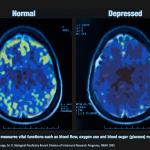 brain stimulation depressed brain